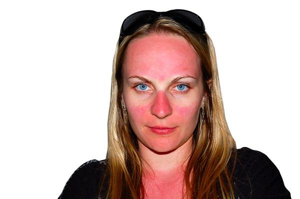 bronzer peau rouge