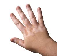 Post image for Comment faire disparaître une tache blanche sur la peau?