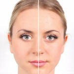 Traiter un microkyste sur le visage sans antibiotique ? La Méthode RNCD