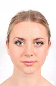 Femme ayant des problèmes de peau