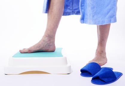La varice sur les pieds et la raison