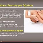 Enlever une cicatrice, le Témoignage impressionnant de Myriam