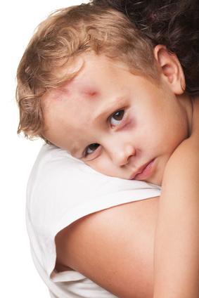 Cicatrice rouge Visage