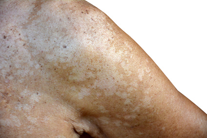 Taches Blanches dues au Pityriasis Versicolor