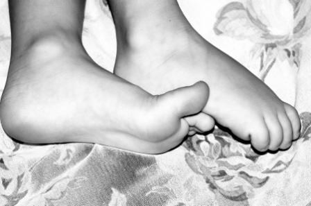 Comment soigner une mycose des pieds