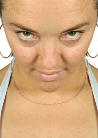 Les Pores de la peau: comment resserrer les pores dilatés ...