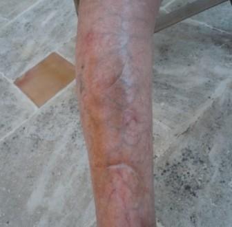 Une Jambe atteinte de Dermatoporose