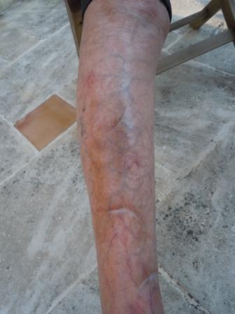 La dermatoporose soleil et cortico des en sont la cause - Peau qui brule comme un coup de soleil ...