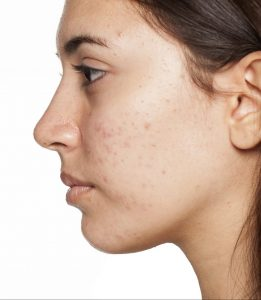 acné visage