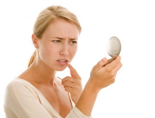 Comment vous débarrasser définitivement de lèvres fendillées à la commissure ?