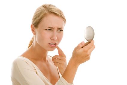 24842ec4a733 Comment vous débarrasser définitivement de votre perlèche ...