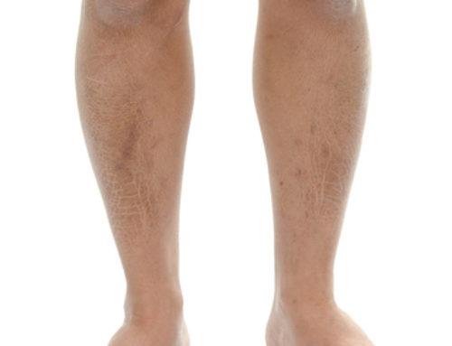 Peau desséchée : Comment prendre soin de vos jambes ?
