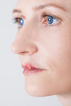 Herpes labial, bouton de fievre
