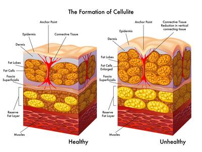 Schema Coupe peau avec amas de cellulite