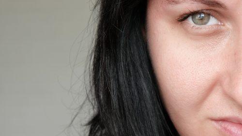 femme ayant les pores dilatés