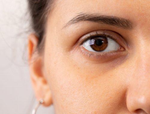 Cernes, poches sous les yeux : quelles sont les causes et pourquoi en a t'on ?