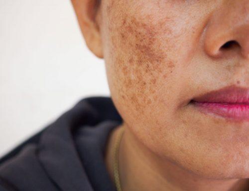 Comment prévenir naturellement l'apparition des taches brunes ?