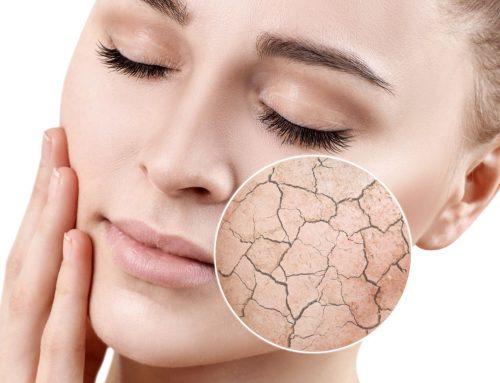 Les céramides : quelle est leur importance au sein de la peau ?