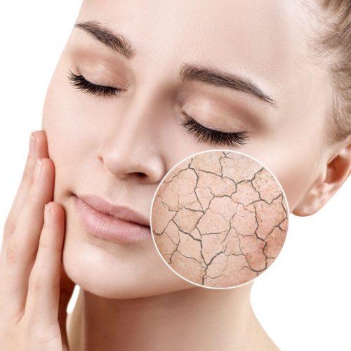 visage femme peau sèche