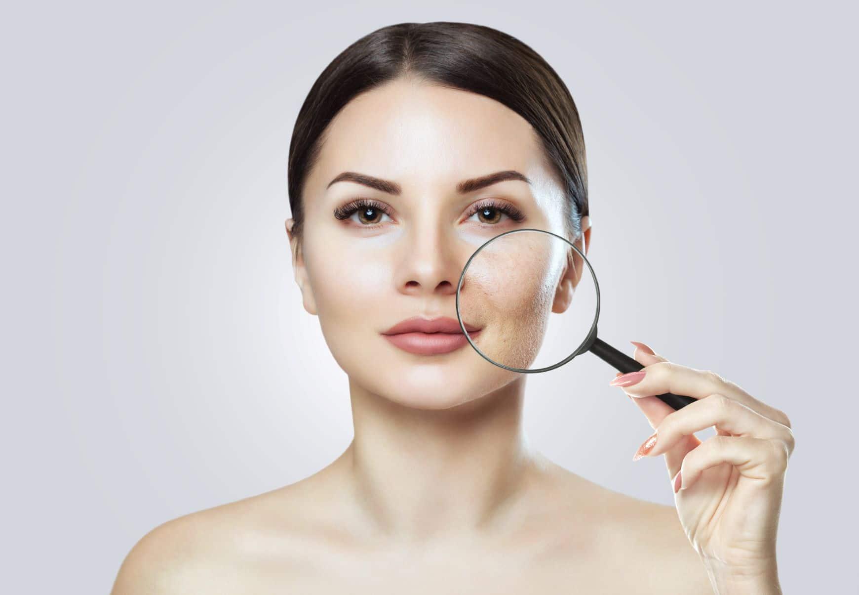 femme regardant ses pores dilatés à la loupe